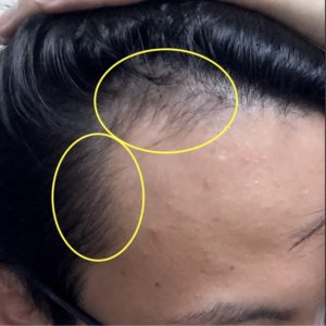 AGA治療開始5ヶ月の髪の状態