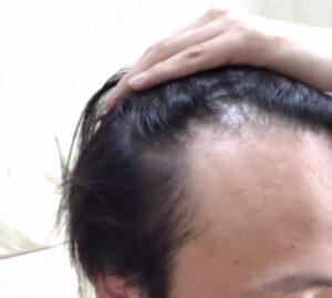AGA治療開始1ヶ月の髪の状態