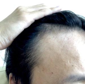 AGA治療開始4ヶ月の髪の状態